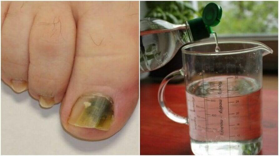 Recette à base d'alcool pour combattre les mycoses des ongles