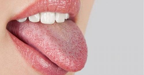 Causes de la bouche sèche.