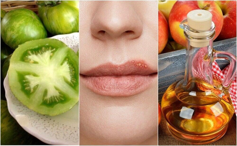 Comment combattre l'herpès labial avec 5 traitements naturels