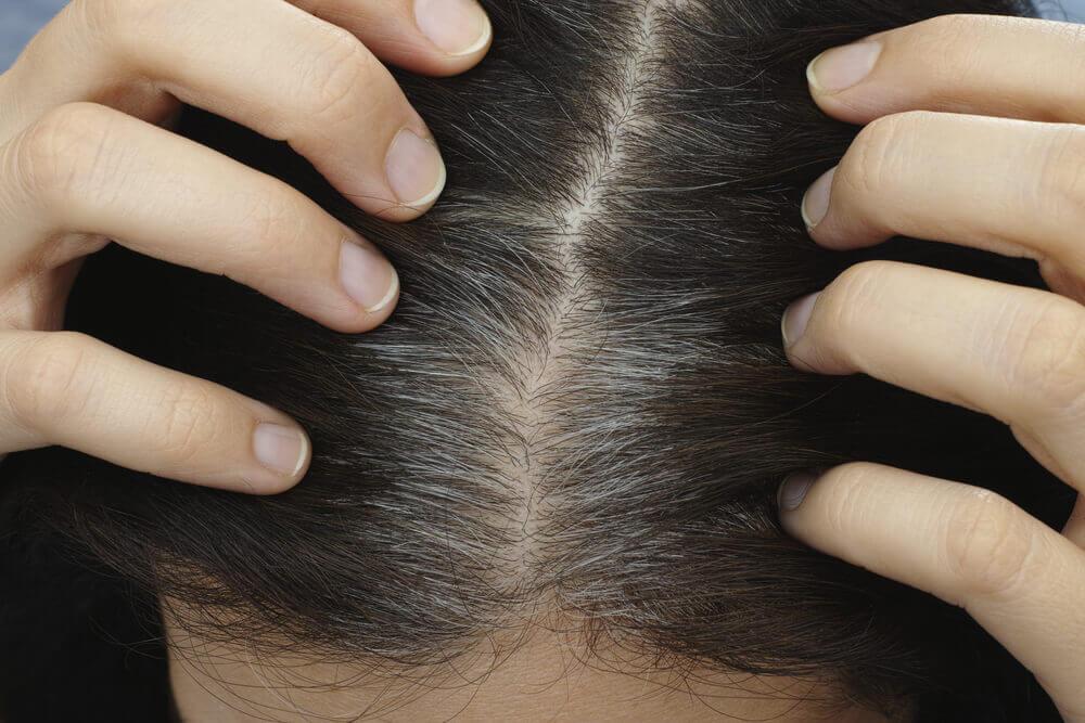 éviter l'apparition de cheveux gris