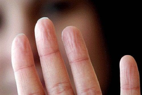 problèmes de santé signalés par l'aspect des mains : sueur excessive