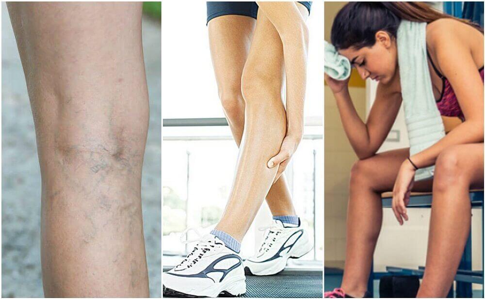 6 facteurs à l'origine des crampes