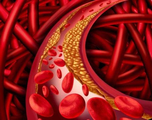 Les symptômes d'un cholestérol élevé