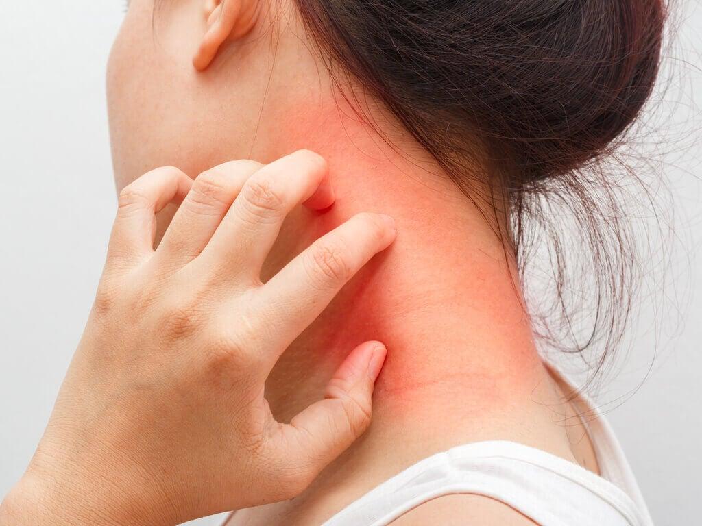 la graine noire peut causer de la dermatite