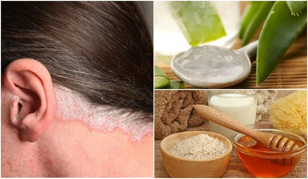 5 remèdes faits maison pour soulager le psoriasis du cuir chevelu