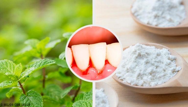 5 remèdes maison efficaces contre la gingivite