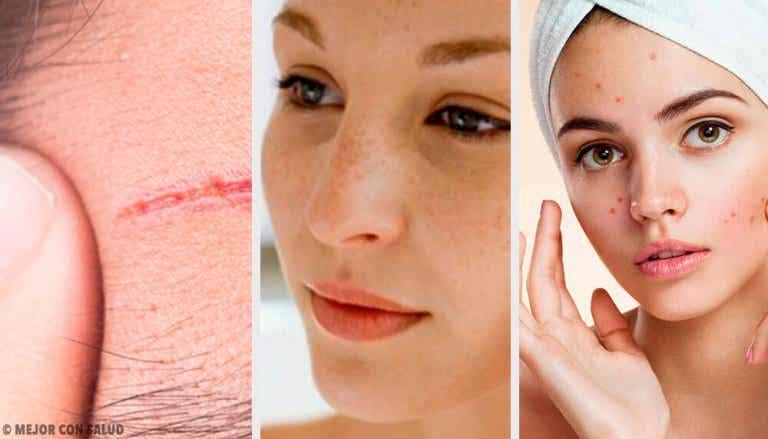 Les problèmes les plus fréquents du visage et comment les traiter