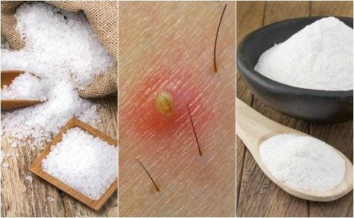 5 solutions naturelles pour éliminer les poils incarnés