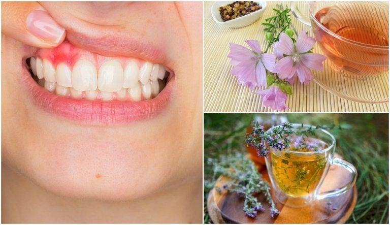 5 solutions naturelles pour contrôler les symptômes de la gingivite