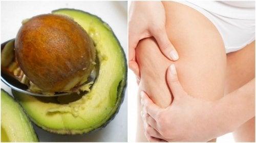 Comment utiliser le noyau d'avocat dans le traitement de la cellulite