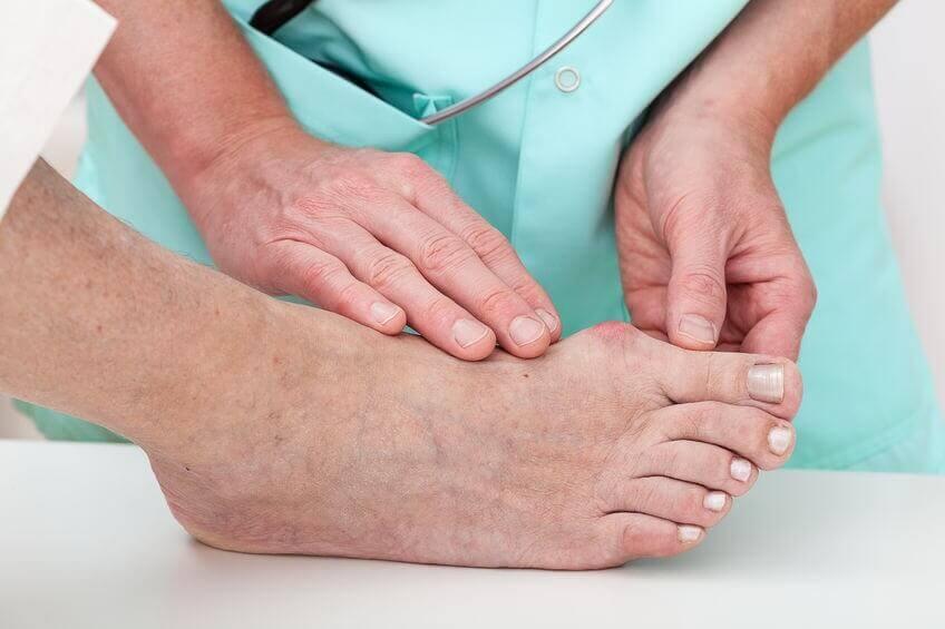 causes des oignons du pied