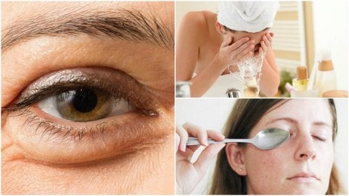 6 méthodes naturelles pour réduire les poches sous les yeux