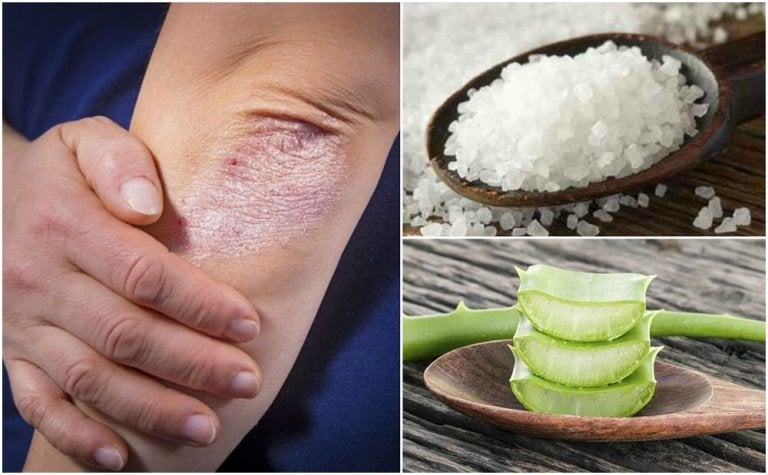 Comment combattre les champignons sur la peau avec 5 solutions naturelles
