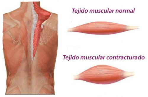 Contracture musculaire