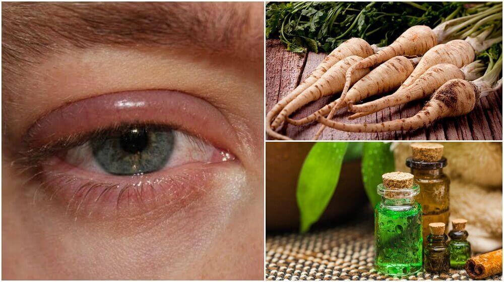 5 remèdes maison pour soigner l'inflammation des paupières