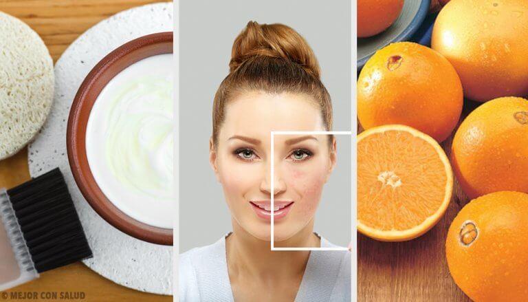 Des méthodes naturelles pour éliminer les taches de votre peau