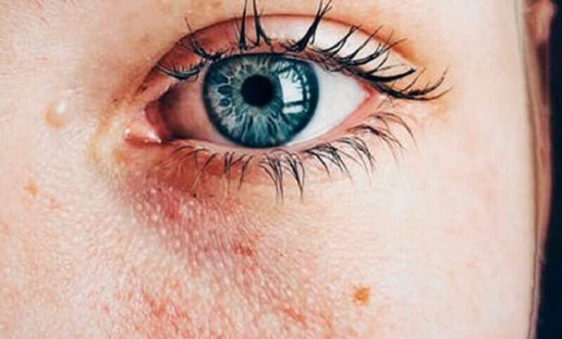 le quinoa améliore l'état de la peau abîmée