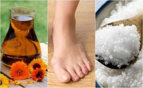 4 solutions naturelles pour réduire les oignons du pied
