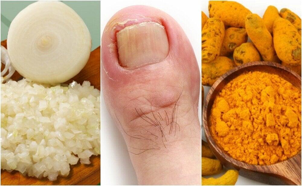 Comment préparer 6 remèdes maison pour traiter les mycoses des ongles