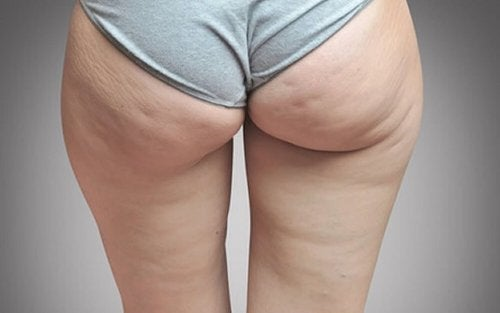 Lien entre rétention d'eau et cellulite