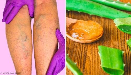 Traitez les varices avec ce remède à l'aloe vera