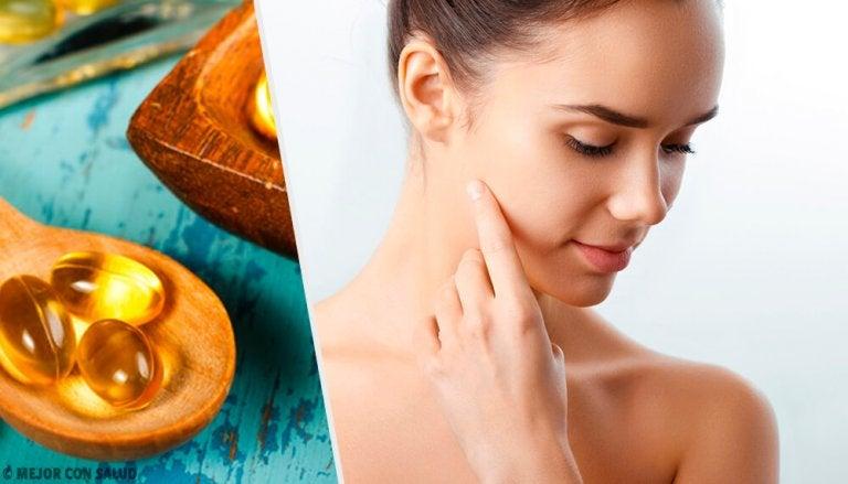 5 façons d'utiliser une capsule de vitamine E sur votre peau