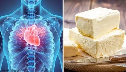 5 aliments qui affectent gravement le cœur