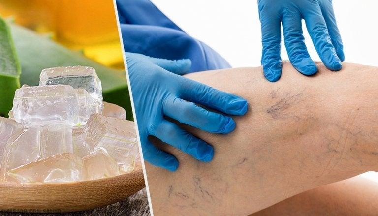5 alternatives pour le traitement des varices