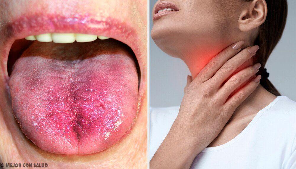 6 façons de savoir si vous des plaques dans la gorge