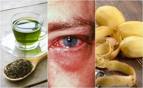 8 astuces maison pour guérir la conjonctivite
