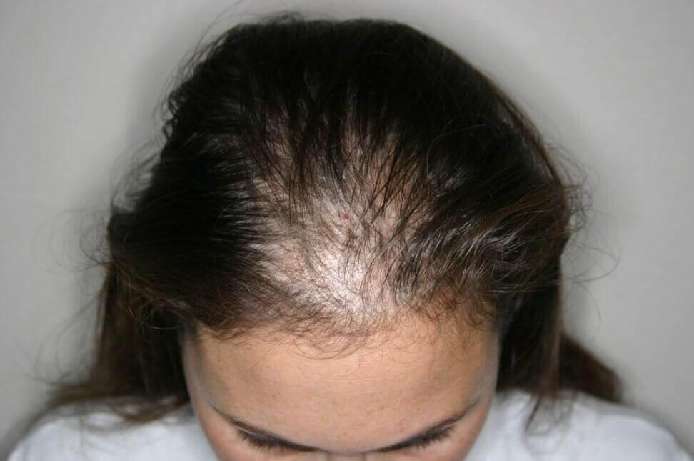alopécie qui engendre une perte de cheveux
