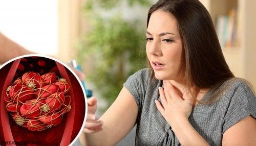 Caillots de sang : 8 signes d'alerte