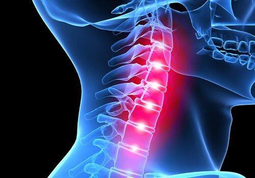 douleurs dans la colonne vertébrale au niveau des cervicales