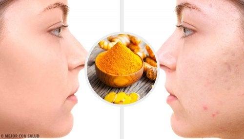 5 masques au curcuma pour éliminer les cicatrices d'acné