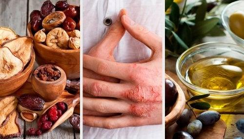 L'eczéma : causes, symptômes, diagnostic et traitement