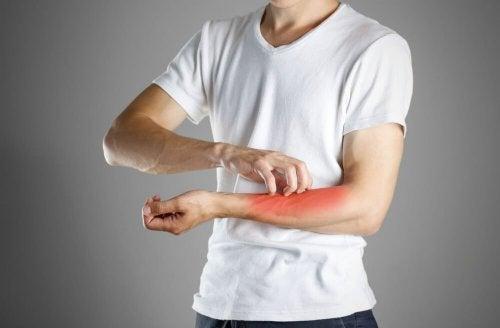 Les symptômes de l eczéma