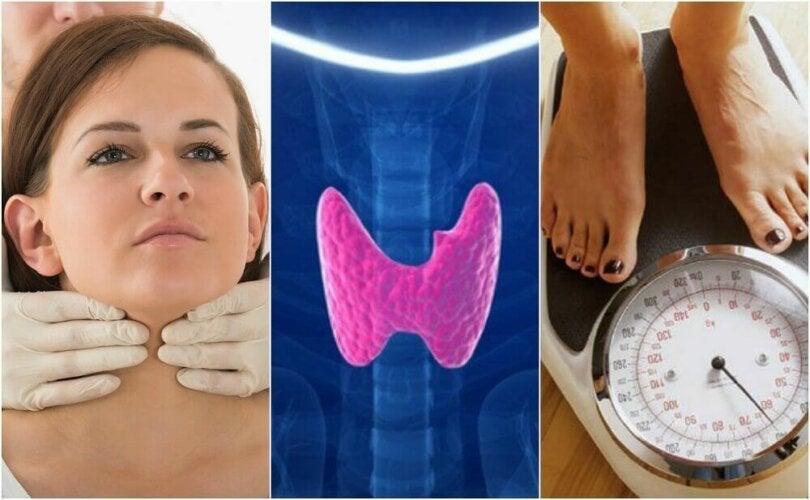 Découvrez 10 symptômes pour savoir si vous souffrez d'hypothyroïdie