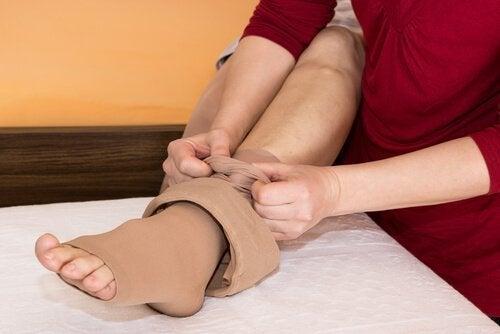 Jambes d'un patient qui souffre de rétention de liquides.
