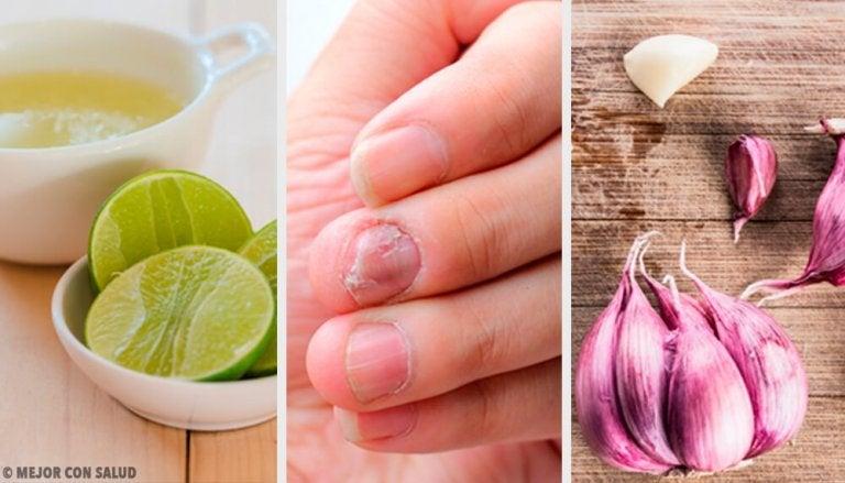 Remèdes maison contre les mycoses des ongles