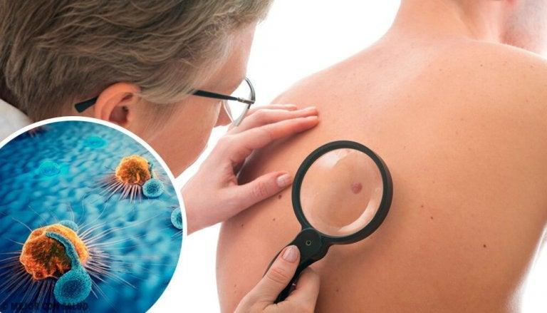 Quels sont les signes d'alerte du cancer de la peau et comment réagir ?