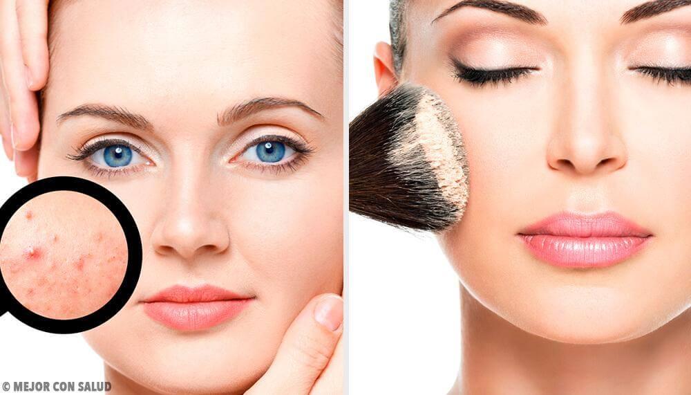 7 astuces de maquillage pour les filles ayant la peau grasse