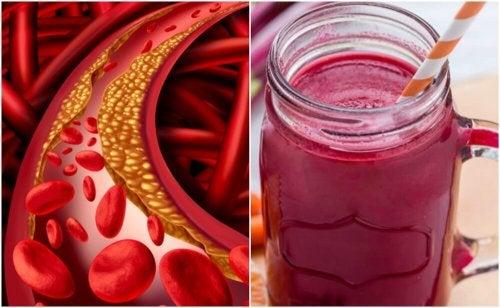 Jus de betterave pour contrôler le taux de cholestérol