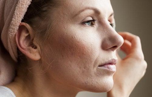 Comment nettoyer les pores.