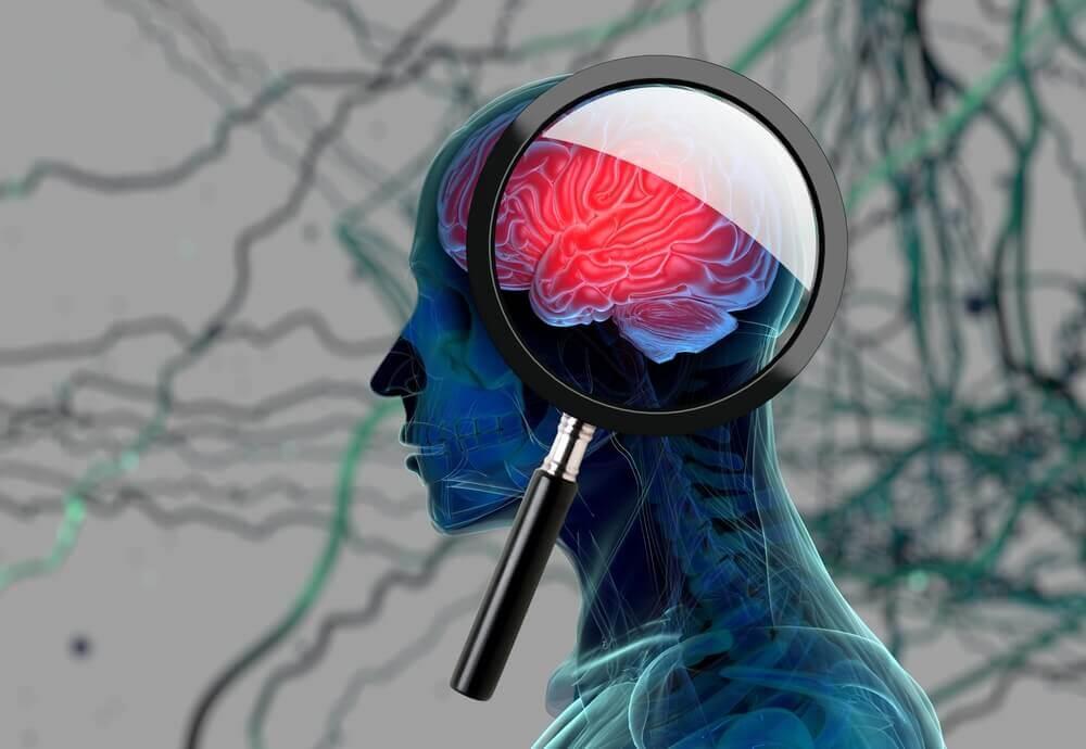 les pertes de mémoire et détection de la maladie d'Alzheimer