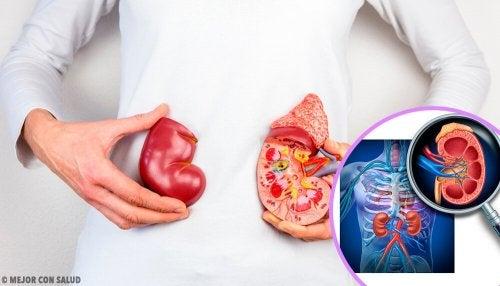 5 choses à savoir sur la transplantation rénale