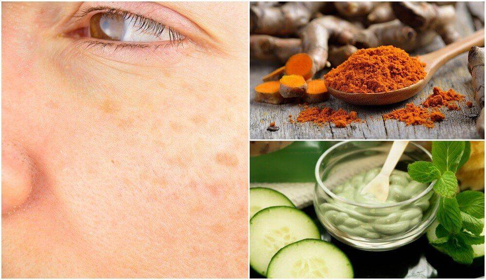 5 remèdes naturels pour éviter les taches de vieillesse