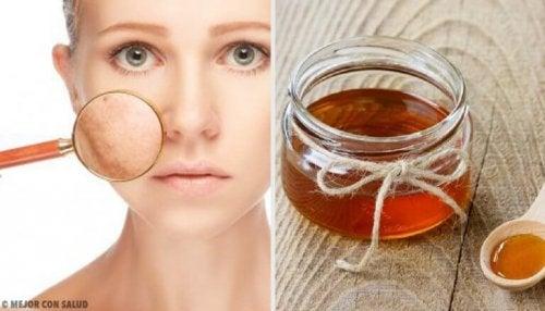 5 remèdes maison pour traiter les infections cutanées