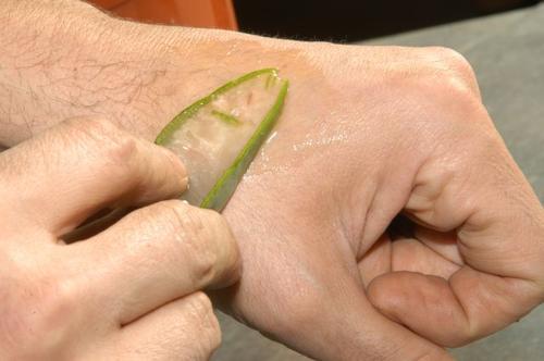 l'aloe vera aide votre peau à cicatriser