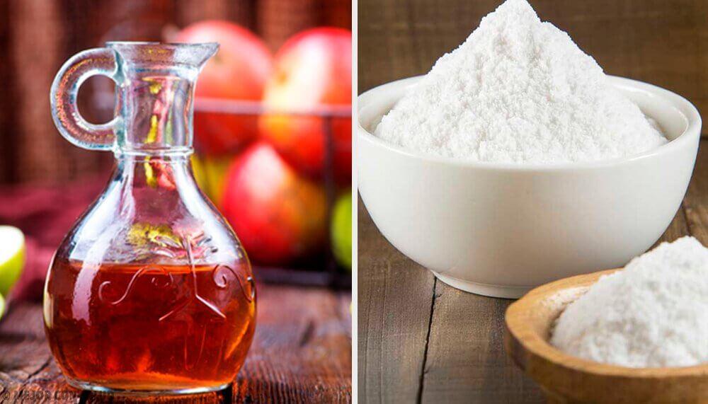remede à base de bicarbonate de sodium et de vinaigre de cidre