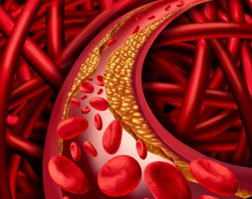 contrôler un cholestérol élevé